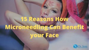 15-Reasons-Microneedling-Is-Needed-As-a-Helps-Skin-Acne-Treatment