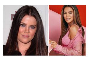 Khloe Kardashian Rhinoplasty