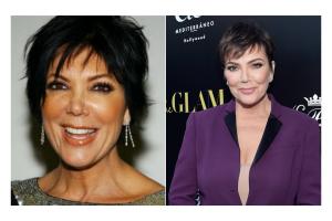 Kris-Jenner-Neck-Lift-Face-Lift