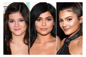 Kylie-Jenner-botox