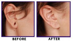 earlobe-repair-surgery-before-and-after