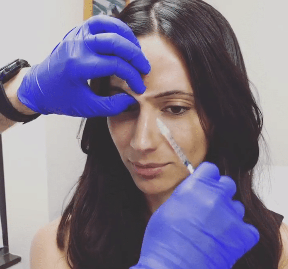 Botox Injections above eyebrows