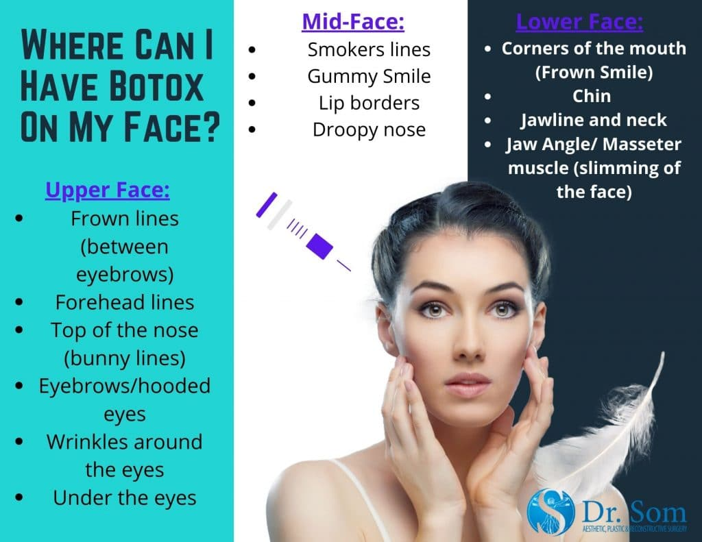 Botox-On-Face-Infographic