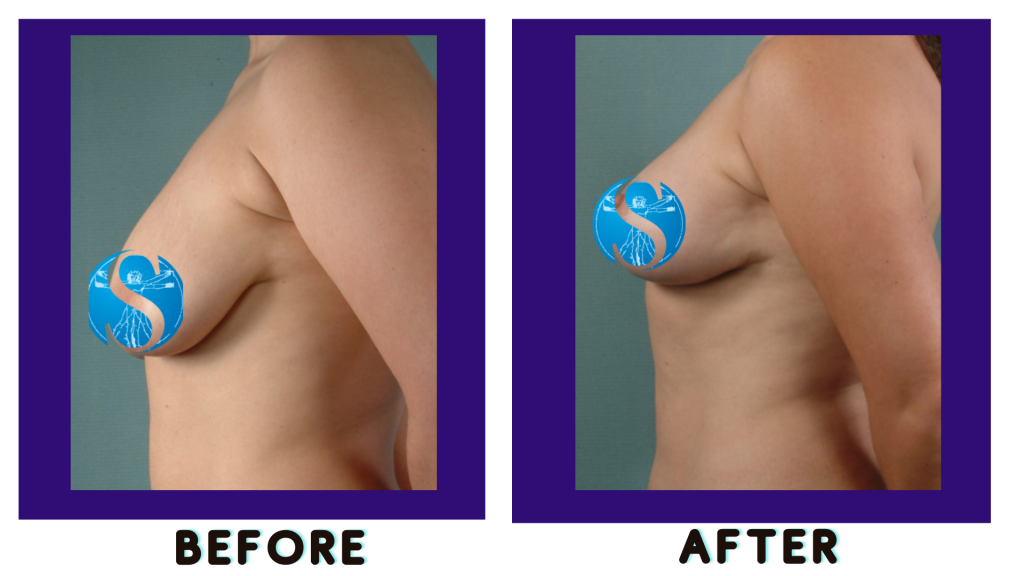 before-after-breast-lift-example