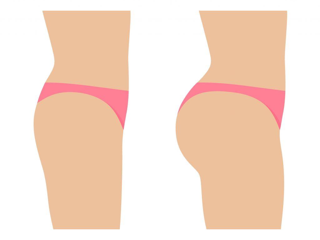 bbl-illustration-Brazilian-butt-lift