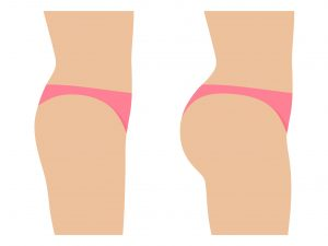 BBL-illustration-Brazilian-butt-lift-cartoon-example