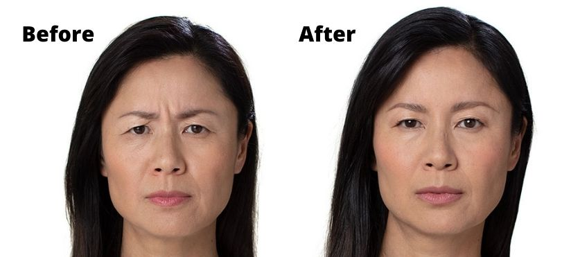 Botox 11 Lines Before and After