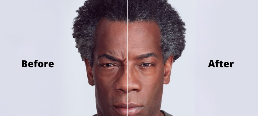 Before and After Botox Man