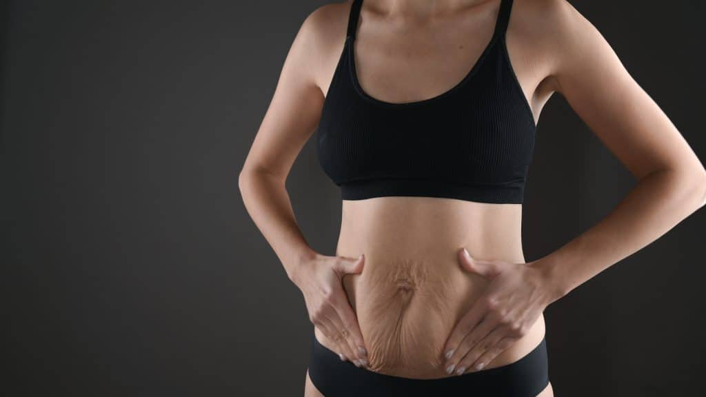 Woman showing stretch mark loss after tummy tuck transparent